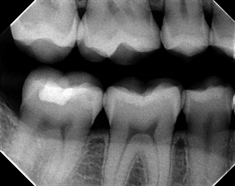 dental x ray in Fairview Heights